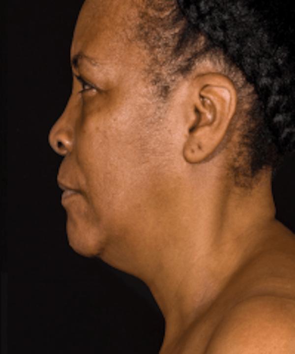 Neck Rejuvenation Gallery - Patient 5930088 - Image 1