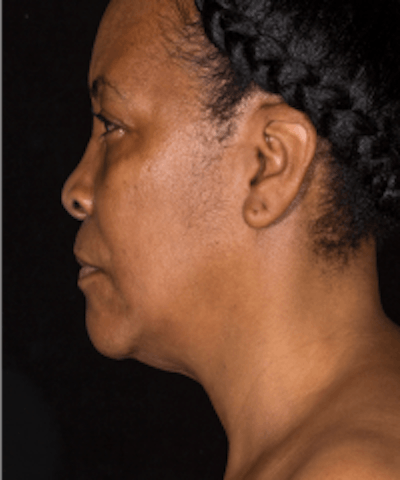 Neck Rejuvenation Gallery - Patient 5930088 - Image 2