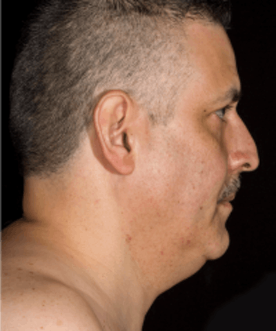 Neck Rejuvenation Gallery - Patient 5930089 - Image 1