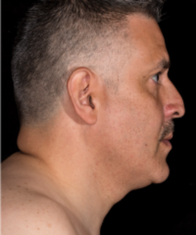 Neck Rejuvenation Gallery - Patient 5930089 - Image 2