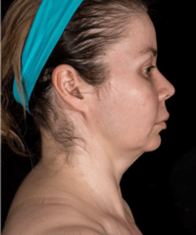 Neck Rejuvenation Gallery - Patient 5930096 - Image 2