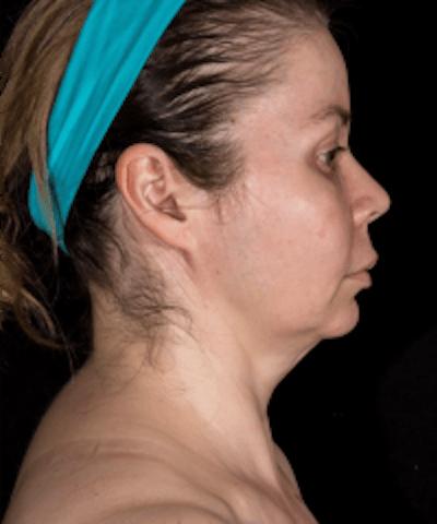 Neck Rejuvenation Gallery - Patient 5930096 - Image 2