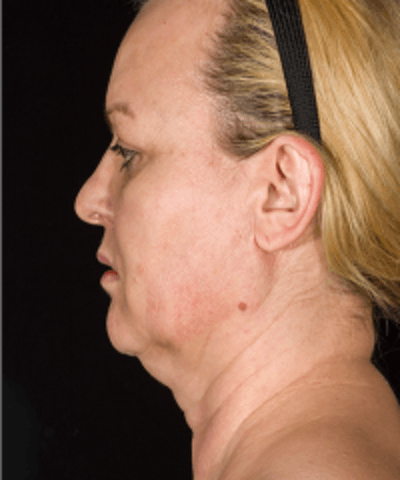 Neck Rejuvenation Gallery - Patient 5930097 - Image 7