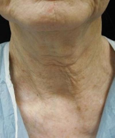 Neck Rejuvenation Gallery - Patient 5930111 - Image 1