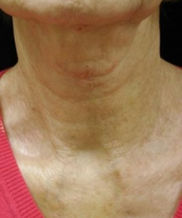 Neck Rejuvenation Gallery - Patient 5930111 - Image 2