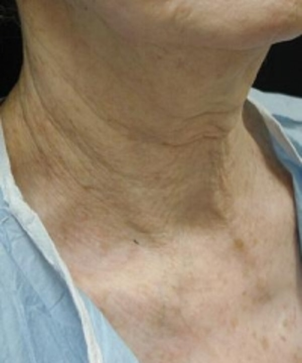 Neck Rejuvenation Gallery - Patient 5930111 - Image 3