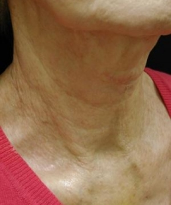 Neck Rejuvenation Gallery - Patient 5930111 - Image 4