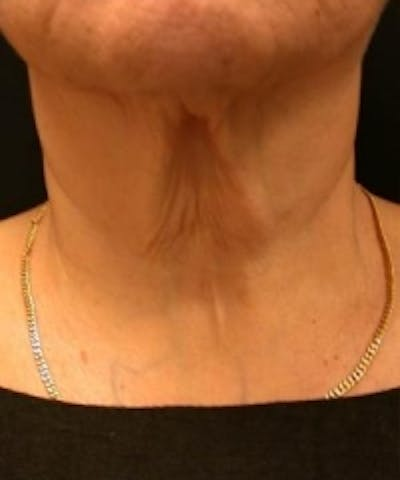 Neck Rejuvenation Gallery - Patient 5930113 - Image 1