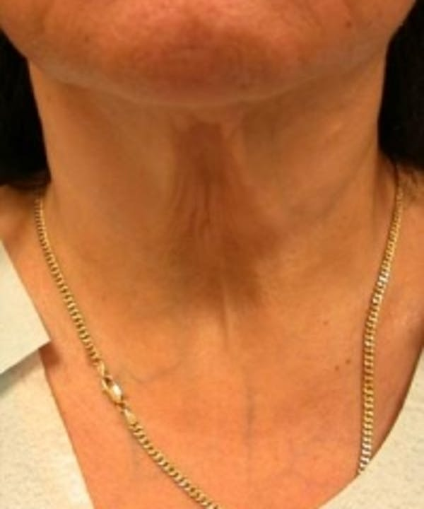 Neck Rejuvenation Gallery - Patient 5930113 - Image 2