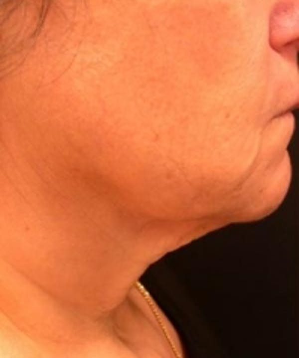 Neck Rejuvenation Gallery - Patient 5930114 - Image 1