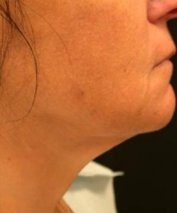 Neck Rejuvenation Gallery - Patient 5930114 - Image 2