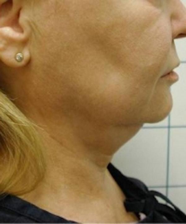 Neck Rejuvenation Gallery - Patient 5930115 - Image 1