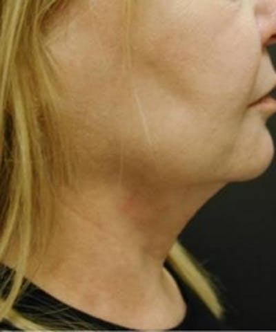 Neck Rejuvenation Gallery - Patient 5930115 - Image 2