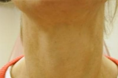 Neck Rejuvenation Gallery - Patient 5930116 - Image 2