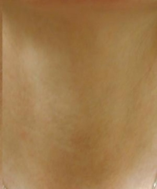 Neck Rejuvenation Gallery - Patient 5930117 - Image 2