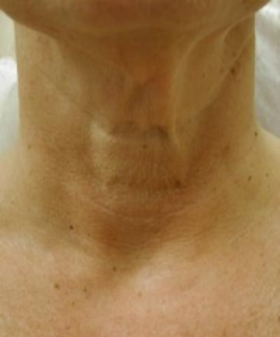 Neck Rejuvenation Gallery - Patient 5930118 - Image 1