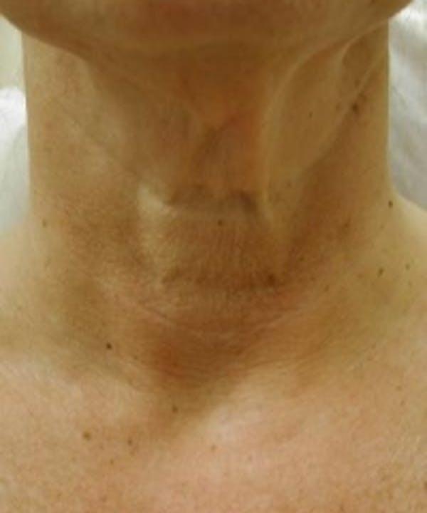Neck Rejuvenation Gallery - Patient 5930118 - Image 1
