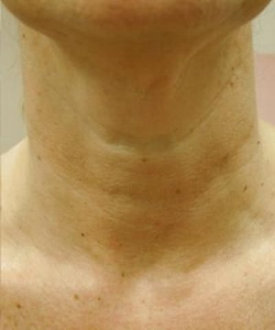 Neck Rejuvenation Gallery - Patient 5930118 - Image 2