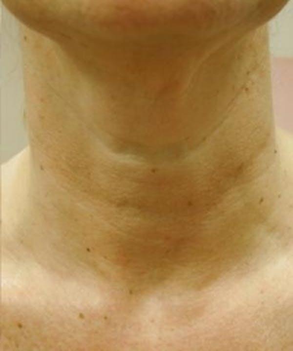 Neck Rejuvenation Gallery - Patient 5930118 - Image 2