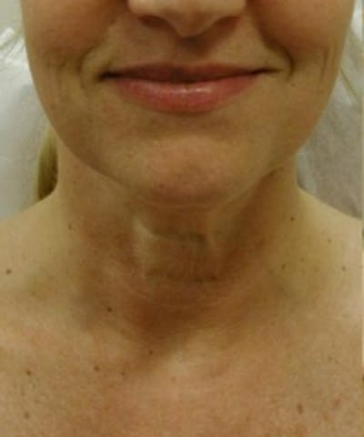 Neck Rejuvenation Gallery - Patient 5930119 - Image 1
