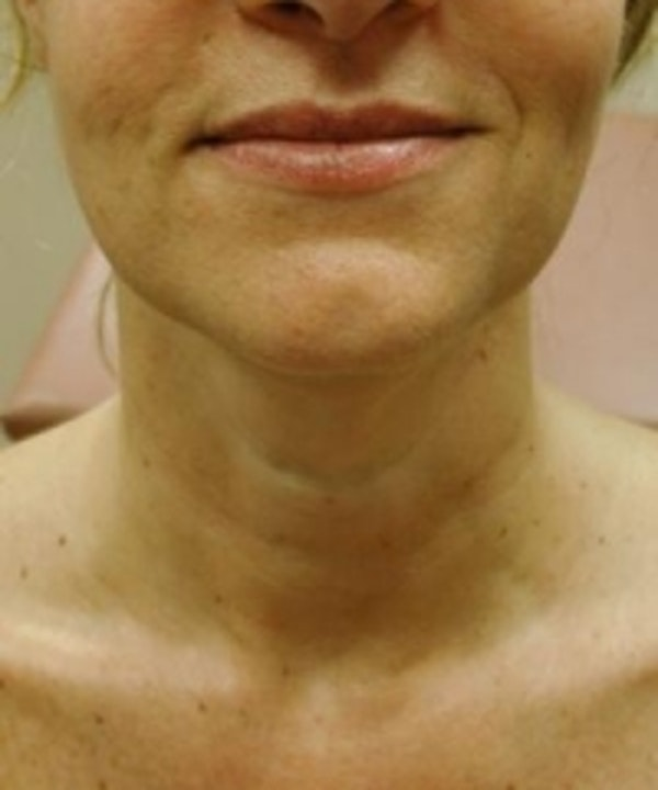 Neck Rejuvenation Gallery - Patient 5930119 - Image 2