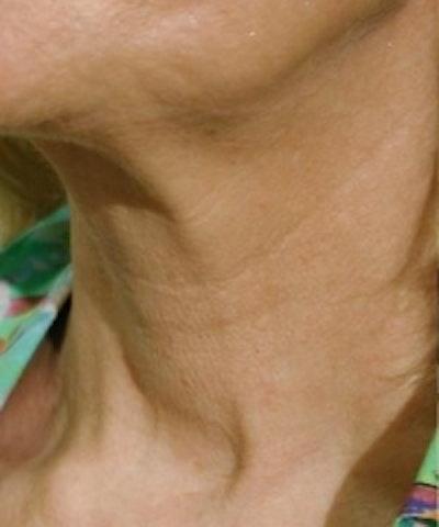 Neck Rejuvenation Gallery - Patient 5930121 - Image 1