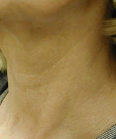 Neck Rejuvenation Gallery - Patient 5930121 - Image 2