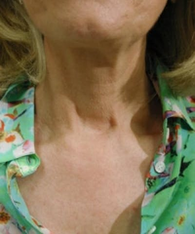 Neck Rejuvenation Gallery - Patient 5930122 - Image 1