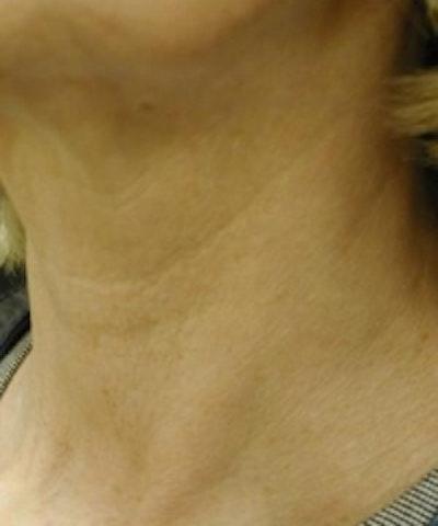 Neck Rejuvenation Gallery - Patient 5930123 - Image 2
