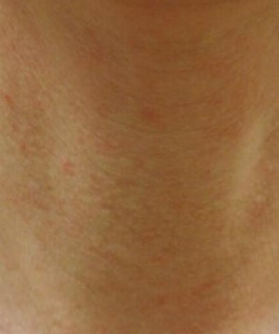 Neck Rejuvenation Gallery - Patient 5930124 - Image 1