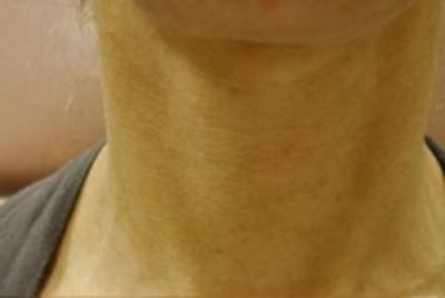 Neck Rejuvenation Gallery - Patient 5930125 - Image 1