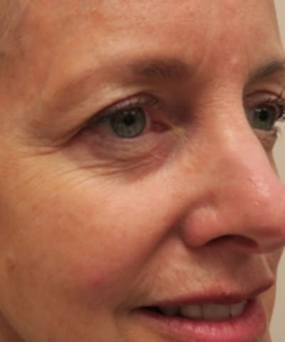 Eyelid Rejuvenation Gallery - Patient 5930148 - Image 1