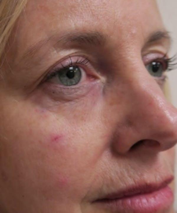 Eyelid Rejuvenation Gallery - Patient 5930148 - Image 2