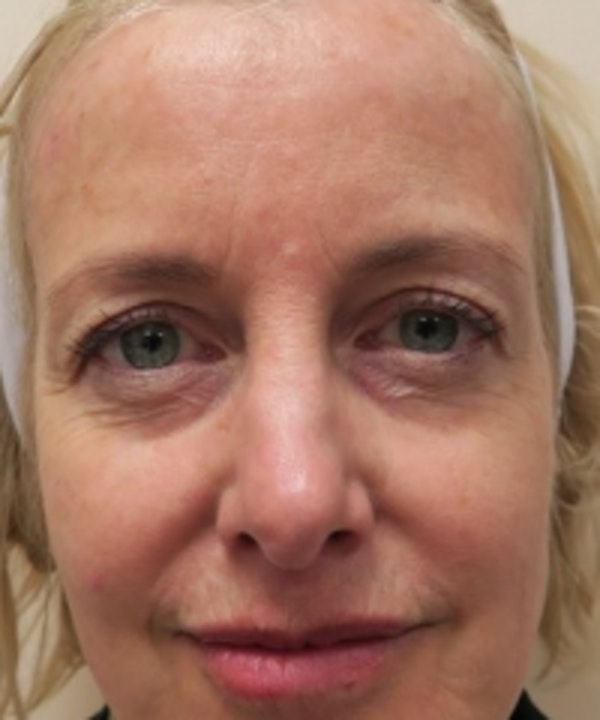 Eyelid Rejuvenation Gallery - Patient 5930151 - Image 1