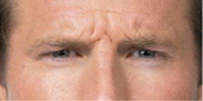 Botox Gallery - Patient 5930150 - Image 1