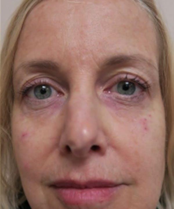 Eyelid Rejuvenation Gallery - Patient 5930151 - Image 2