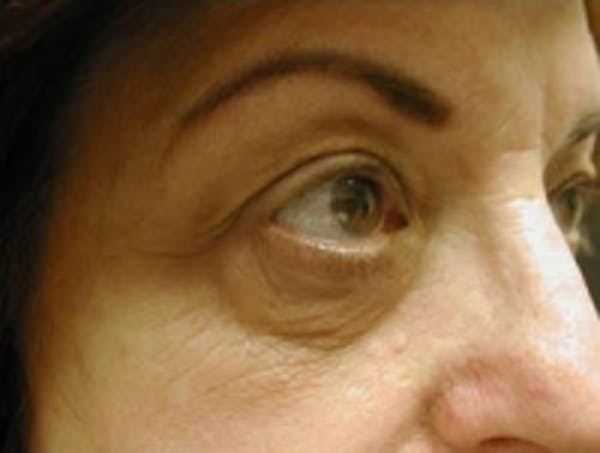 Eyelid Rejuvenation Gallery - Patient 5930162 - Image 1