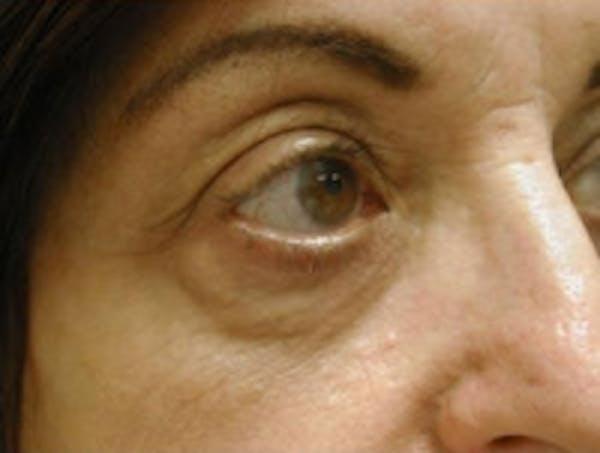Eyelid Rejuvenation Gallery - Patient 5930162 - Image 2