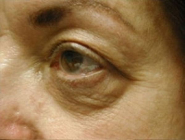 Eyelid Rejuvenation Gallery - Patient 5930162 - Image 3
