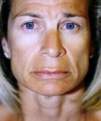 Botox Gallery - Patient 5930163 - Image 3