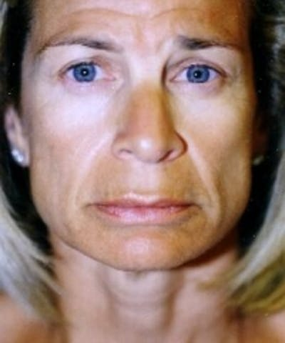 Botox Gallery - Patient 5930163 - Image 1