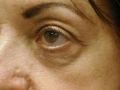 Eyelid Rejuvenation Gallery - Patient 5930162 - Image 4