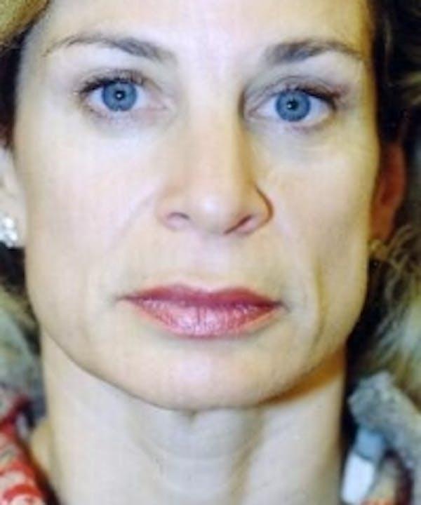 Botox Gallery - Patient 5930163 - Image 2