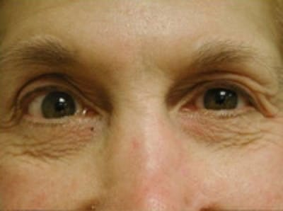 Eyelid Rejuvenation Gallery - Patient 5930167 - Image 1
