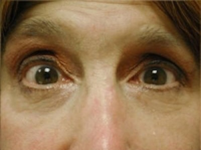 Eyelid Rejuvenation Gallery - Patient 5930167 - Image 2