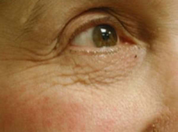 Eyelid Rejuvenation Gallery - Patient 5930167 - Image 3