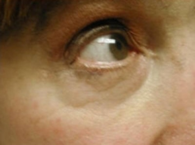 Eyelid Rejuvenation Gallery - Patient 5930167 - Image 4
