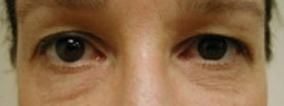 Eyelid Rejuvenation Gallery - Patient 5930169 - Image 5