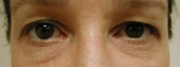 Eyelid Rejuvenation Gallery - Patient 5930169 - Image 1