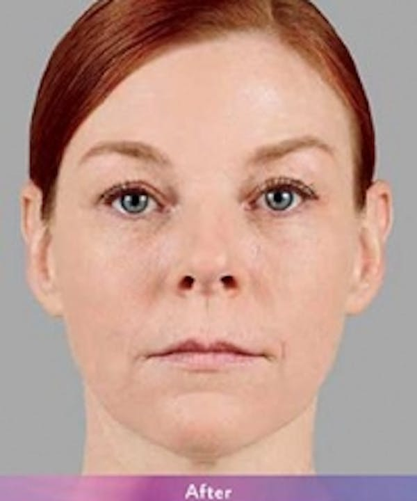 Fillers Gallery - Patient 5930168 - Image 2